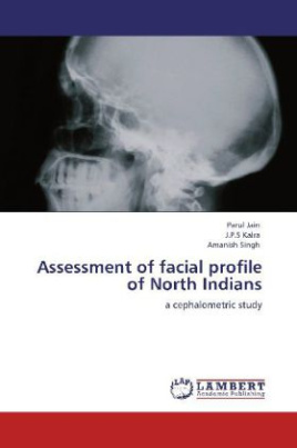Assessment of facial profile of North Indians