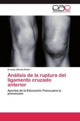 Análisis de la ruptura del ligamento cruzado anterior