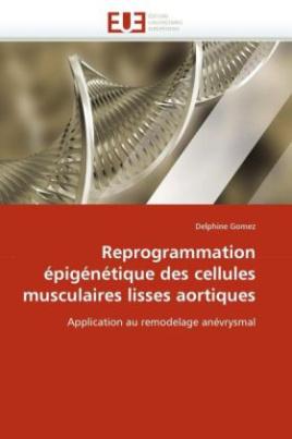 Reprogrammation épigénétique des cellules musculaires lisses aortiques