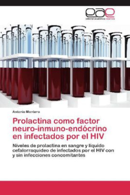 Prolactina como factor neuro-inmuno-endócrino en infectados por el HIV
