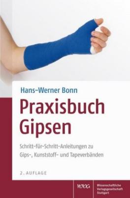 Praxisbuch Gipsen